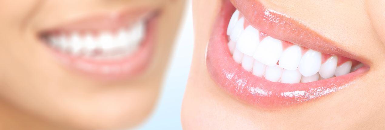 система отбеливания зубов brilliant